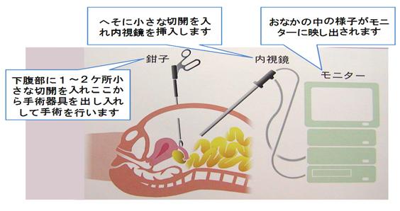 腹腔鏡手術の図