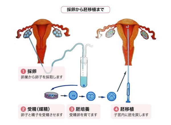 体外 受精 流れ